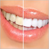 Smile - Comparison